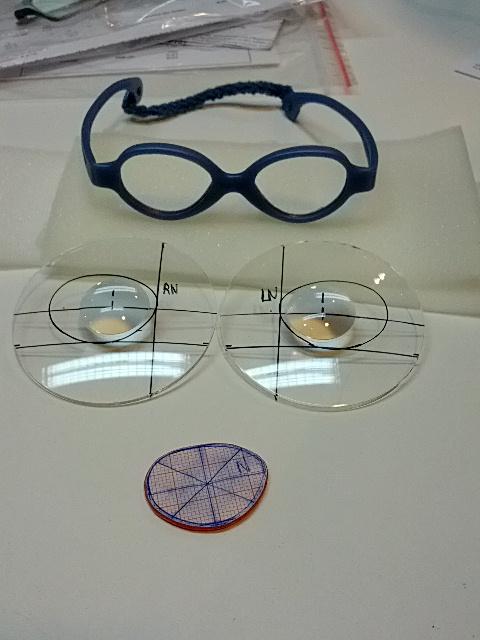 Babybrille mit hohen Stärken. Hier werden  Spezialgläser in Handarbeit eingepasst